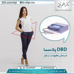 پلاسما DBD